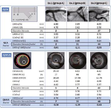 Diffuse atherosclerotic left main coronary artery disease unmasked