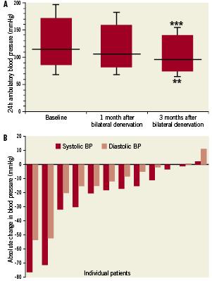 Catheter-based renal denervation for drug-resistant