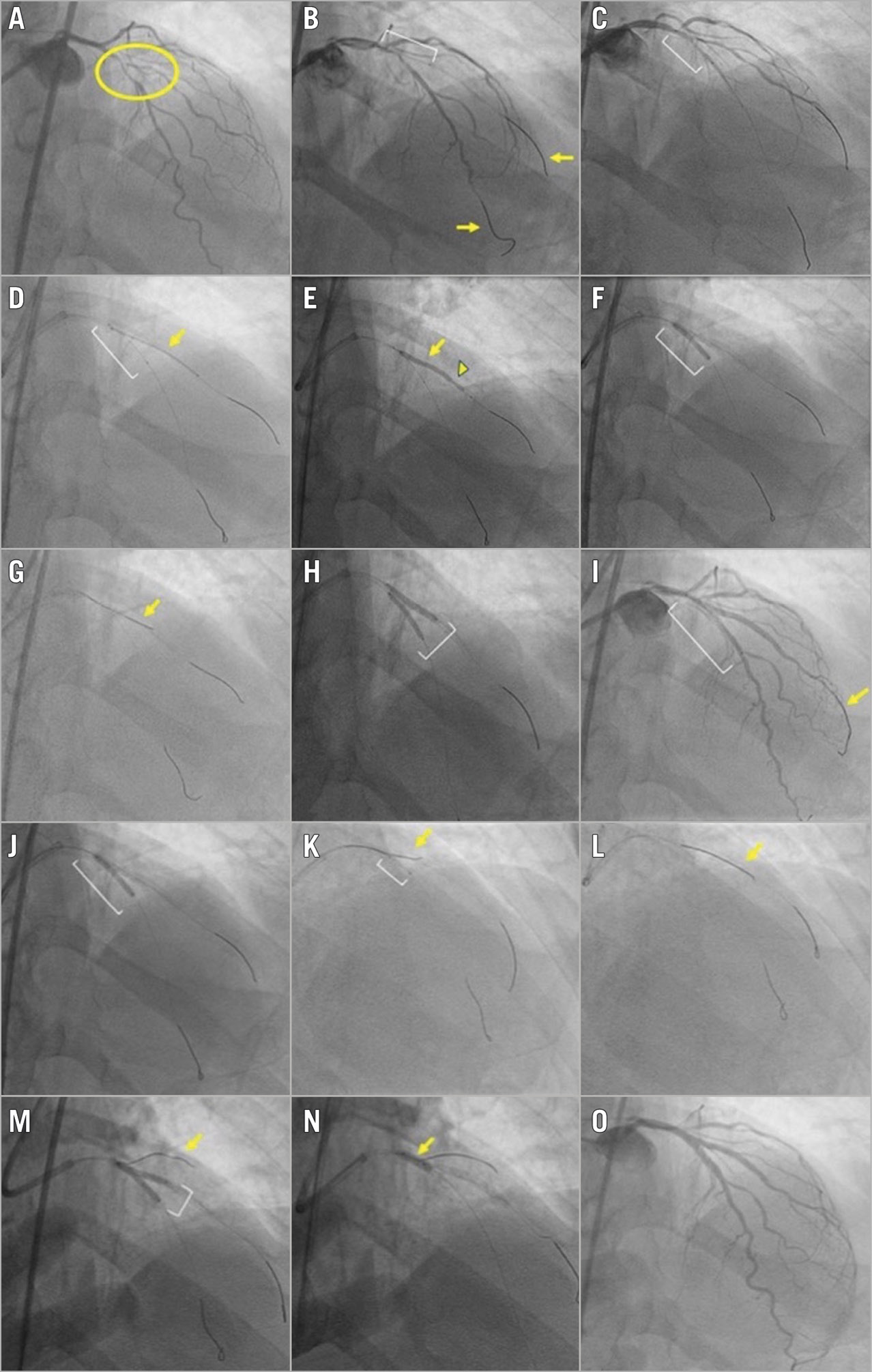 Figure 1. Angiographic case example of a bifurcation lesion treated successfully with the double kissing crush technique. A) Medina 1,1,1 bifurcation lesion (yellow circle) with significant disease involving the mid left anterior descending (LAD) artery and the bifurcating second diagonal branch. The bifurcation angle is <70°. The side branch supplies a large myocardial segment. B) Wires (yellow arrows) are placed in both the LAD (main vessel) and the diagonal branch (side branch). A balloon (white bracket) is placed in the diagonal branch for predilation. C) A balloon (white bracket) is placed in the LAD for predilation. D) A stent (yellow arrow) is positioned in the diagonal branch. A balloon (white bracket) is pre-positioned in the LAD prior to deploying the diagonal stent to allow subsequent crushing of the diagonal branch stent. E) The diagonal branch stent is deployed (yellow arrow). The angiographic result in the diagonal is optimised (for example to correct stent underexpansion indicated by arrowhead) prior to crushing the side branch stent. F) The LAD balloon (white bracket) is inflated, crushing the diagonal stent. G) A new wire (yellow arrow) is used to re-wire the crushed diagonal branch stent and the original diagonal wire is removed. H) The first simultaneous kissing balloon inflation (white bracket) is performed in the LAD and diagonal branch. I) The LAD stent is positioned (white bracket); the diagonal wire (yellow arrow) is not removed. J) The LAD stent (white bracket) is deployed, followed by proximal optimisation technique (POT) of the main vessel stent (not imaged). K) Due to difficulty re-wiring the diagonal branch, a Twin-Pass® Torque (Teleflex) dual-lumen microcatheter (white bracket) is used, with successful advancement of a new wire (yellow arrow) through the over-the-wire port of the device. L) The jailed diagonal wire (yellow arrow) is removed. M) The second simultaneous kissing balloon inflation (white bracket) is performed. A wire (yello