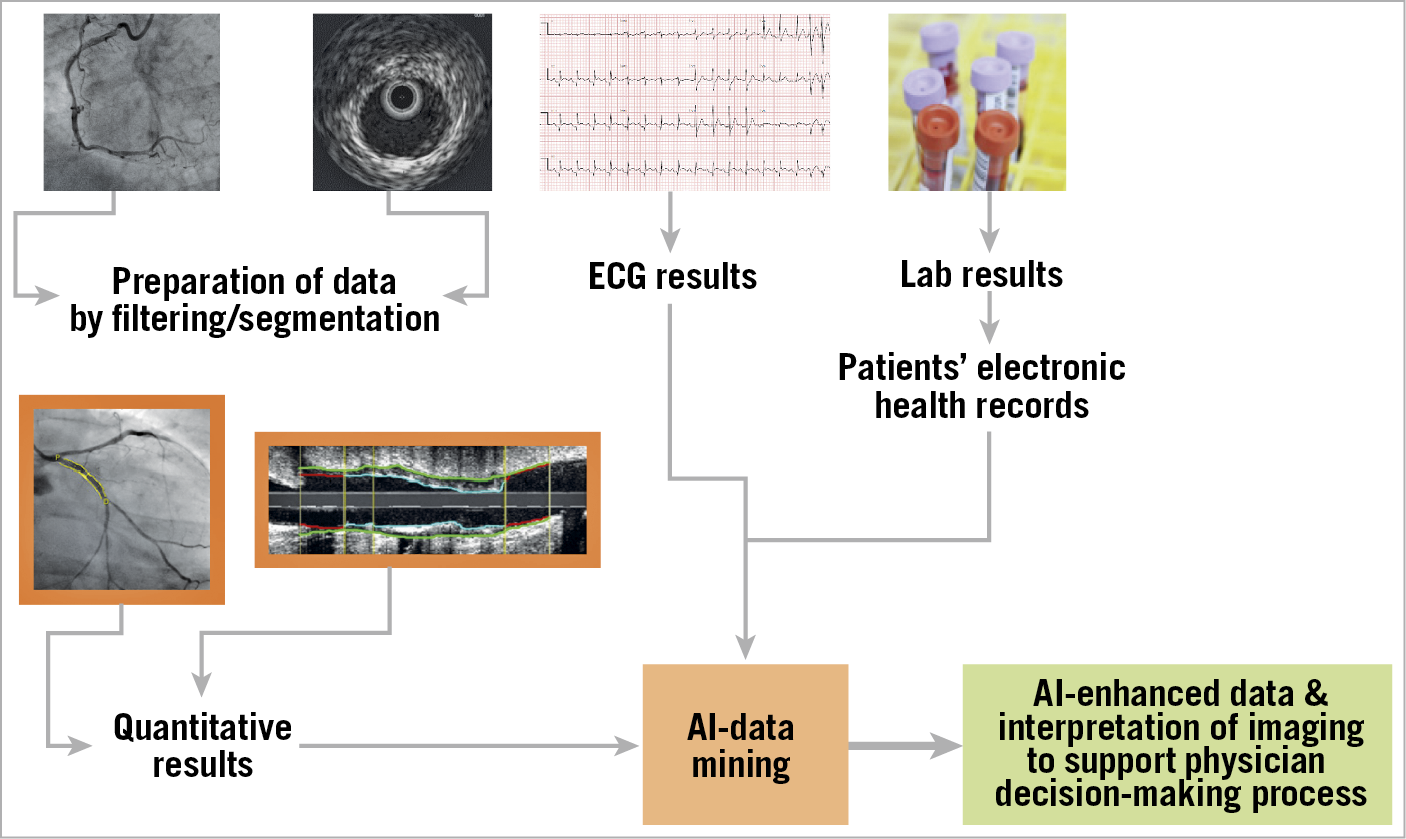 Figure 1. Schematic presentation of the use of artificial intelligence (AI) with data mining in the interventional laboratory. Integration of X-ray and intravascular imaging data, ECG, laboratory results, and the patient's electronic health records are analysed by AI. Imaging interpretation will be supported by AI and enhanced by real-time clinical, laboratory and other important information to support the physician's decision-making process.