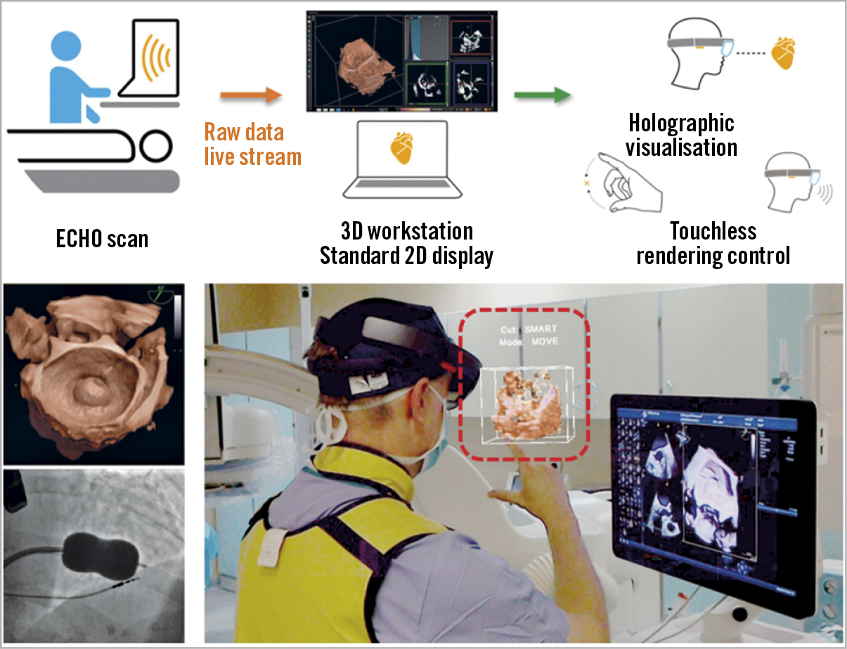 Figure 2. The HoloLens mixed reality display (Microsoft, Redmond, WA, USA) is used to overlay 3D data on a hologram reality view during a balloon mitral valve intervention. Data obtained for ultrasound echocardiography are visible as a semi-transparent holographic cube positioned in front of the echocardiographist and shared by an interventional cardiologist. Reproduced with permission from Kasprazak et al26, and from the European Society of Cardiology. All rights reserved.