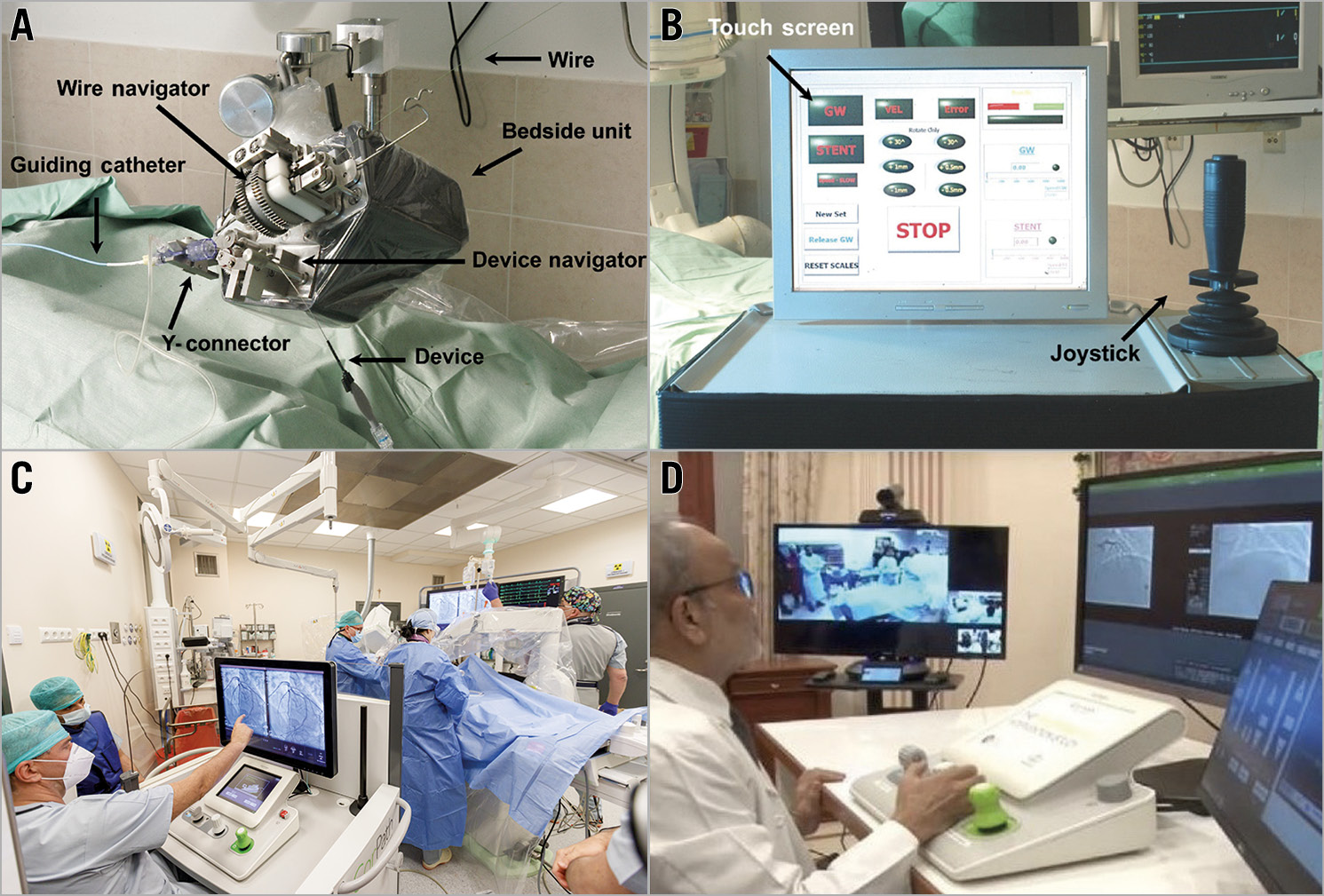 Figure 3. The evolution of the robotic PCI system and concept. A) The original Remote Navigation System manipulating wire and device are controlled at the console by a joystick (B). Reprinted from Beyar et al55, with permission from Elsevier. C) The current CorPath GRX control station60 is positioned within a shielded cockpit in the catheterisation laboratory with the operator console controlling the wire, the device, and the guide catheter (taken during robotic PCI at the Interventional Cardiology Center, Jagiellonian University Hospital, Poland). D) Set-up for the first remote catheterisation performed by Dr Tejas Patel in Ahmadabad, India. The control station is located 35 km away from the catheterisation laboratory, with the robotic arm at the patient side. The video of the patient room and the monitor screen are transmitted via the internet. From Patel et al79 [CC BY-NC-ND 4.0].