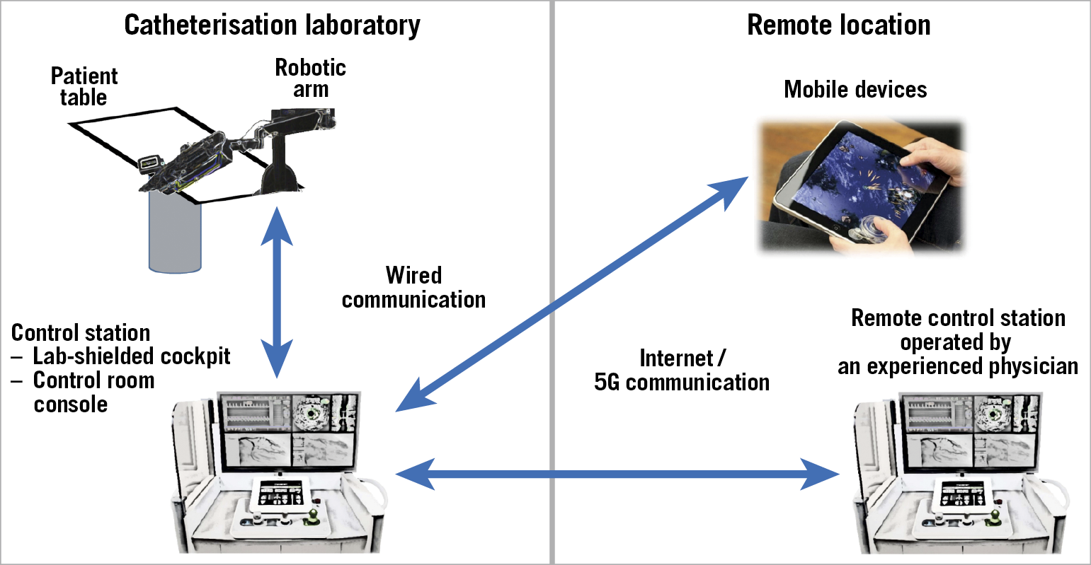 Figure 4. Local and remote schematics. The robotic arm, located in the catheterisation laboratory, is hard-wired to the control station, which can be placed either in the catheterisation laboratory or in the control room, according to the operator's preference. A second remote control unit, which can also be installed on a mobile device, is connected through the internet or a 5G wireless connection and can be placed in any other location (i.e., either elsewhere in the same or a different hospital, or any location worldwide).